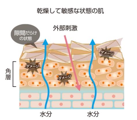 乾燥敏感肌